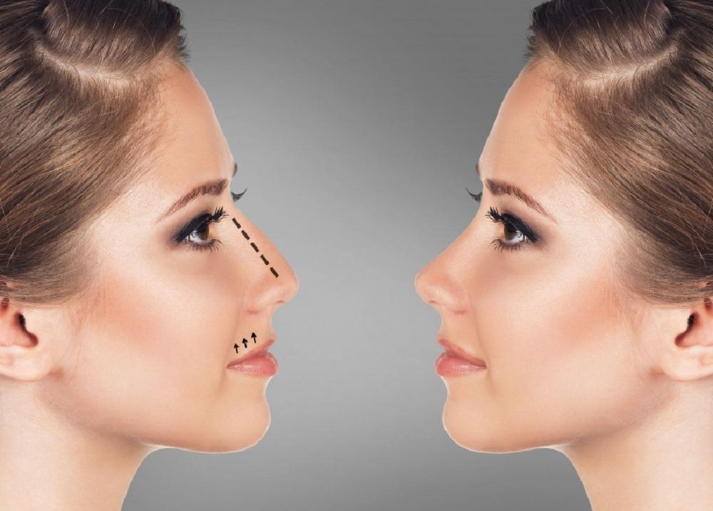 Cat te poate schimba schimba chirurgia estetica a nasului?