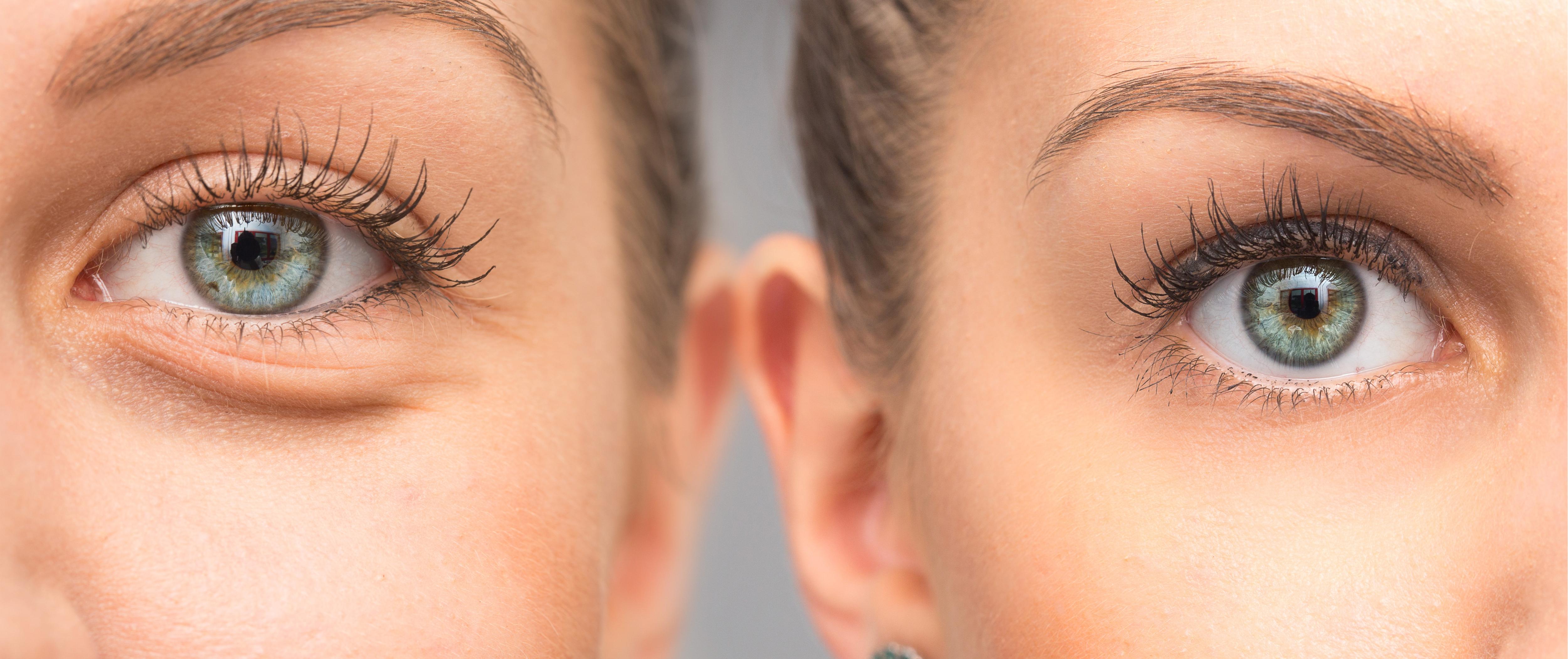 Cele mai eficiente modalitati de a scapa de pungile inestetice de sub ochi